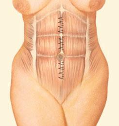 Drawn mussel Surgery University (abdominoplasty) Tuck of