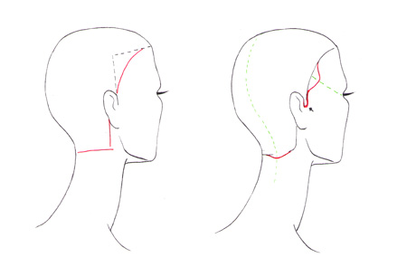 Drawn profile hairline In HAIRLINE to Draw hair