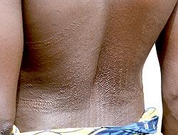 Drawn scar back Benin: THE Lars Scarification OF