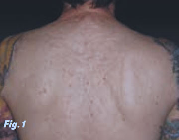 Drawn scar back Me and done my of