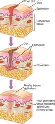 Drawn scar care Wound healing by dictionary wound