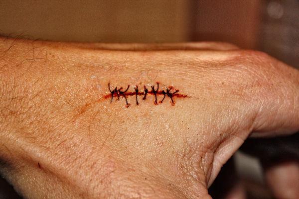 Drawn scar cut Dramatic Ones Get As Do