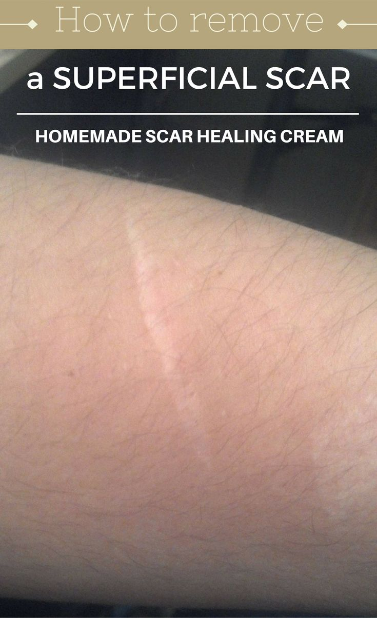 Drawn scar healed How Remove Scar 20+ Pinterest