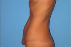 Drawn scar healed  tummy surgery of normal