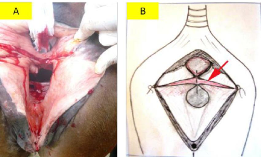Drawn scar laceration A):  (A): scar that