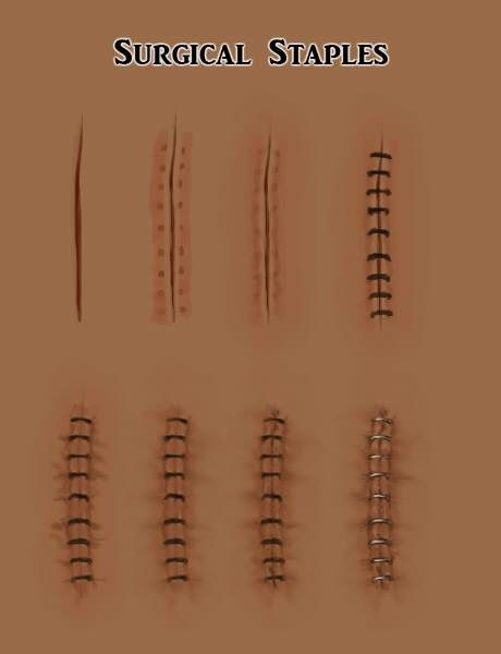 Drawn scar laceration On Drawing etc to: Wounds