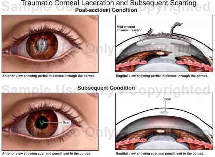 Drawn scar laceration And Traumatic  Corneal Scarring