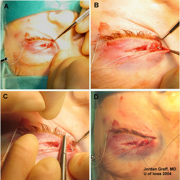 Drawn scar laceration Pigtail Dog repair Canalicular Bite