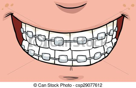 Drawn smile brace  Braces braces on