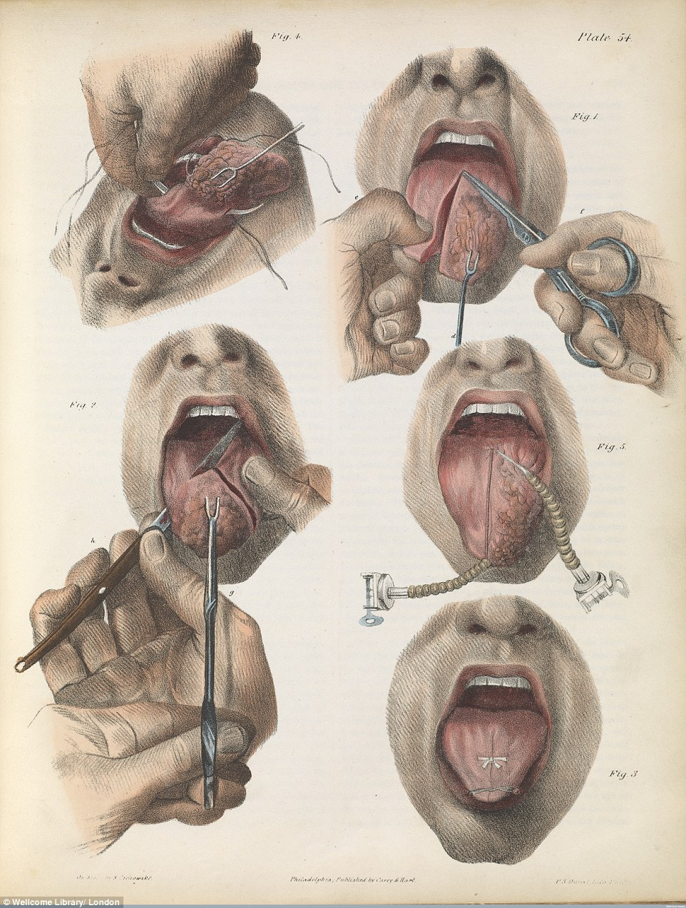 Drawn tongue finger  show the cancer Gory: