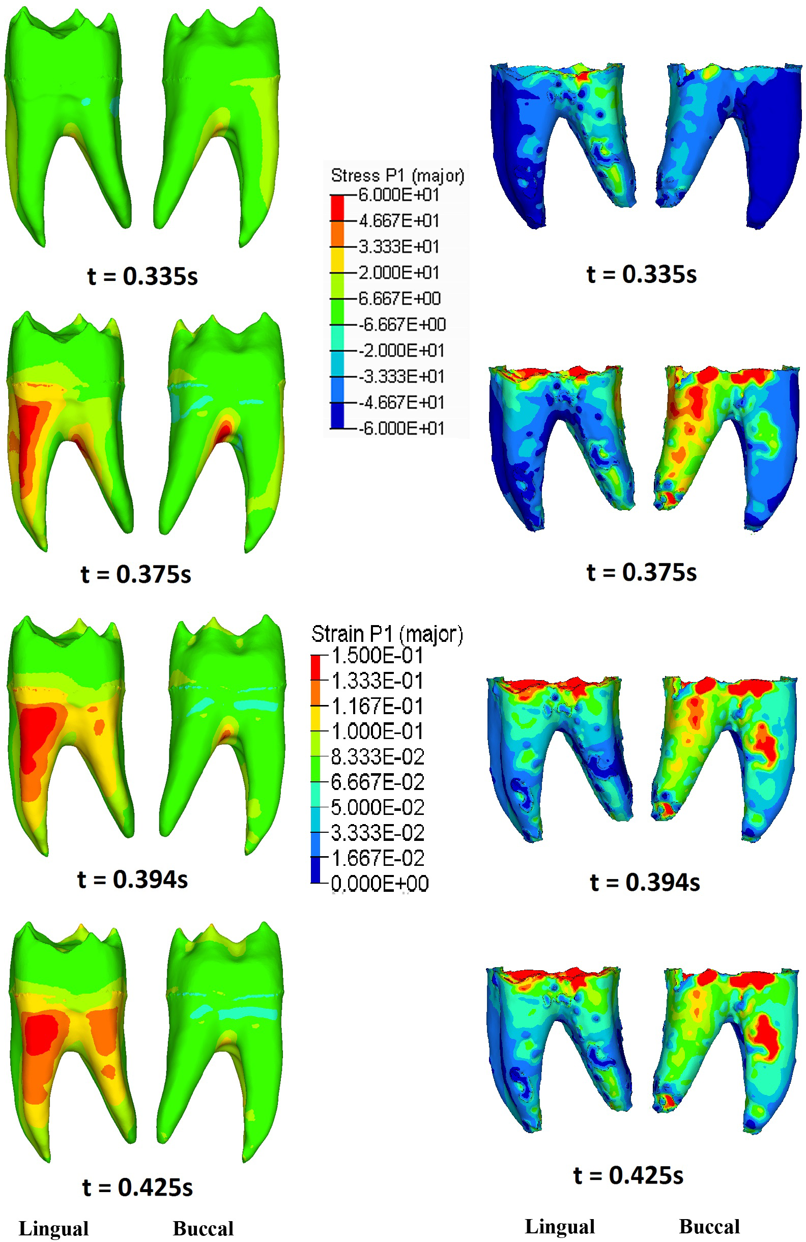 Elemental clipart literary analysis Deformation of Dynamic PNG Tooth