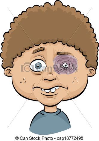 Eyeball clipart boy 435 swollen  boy A