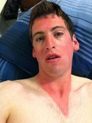 Fail clipart bad face Badly Sunburn Sunburns Worst Fails