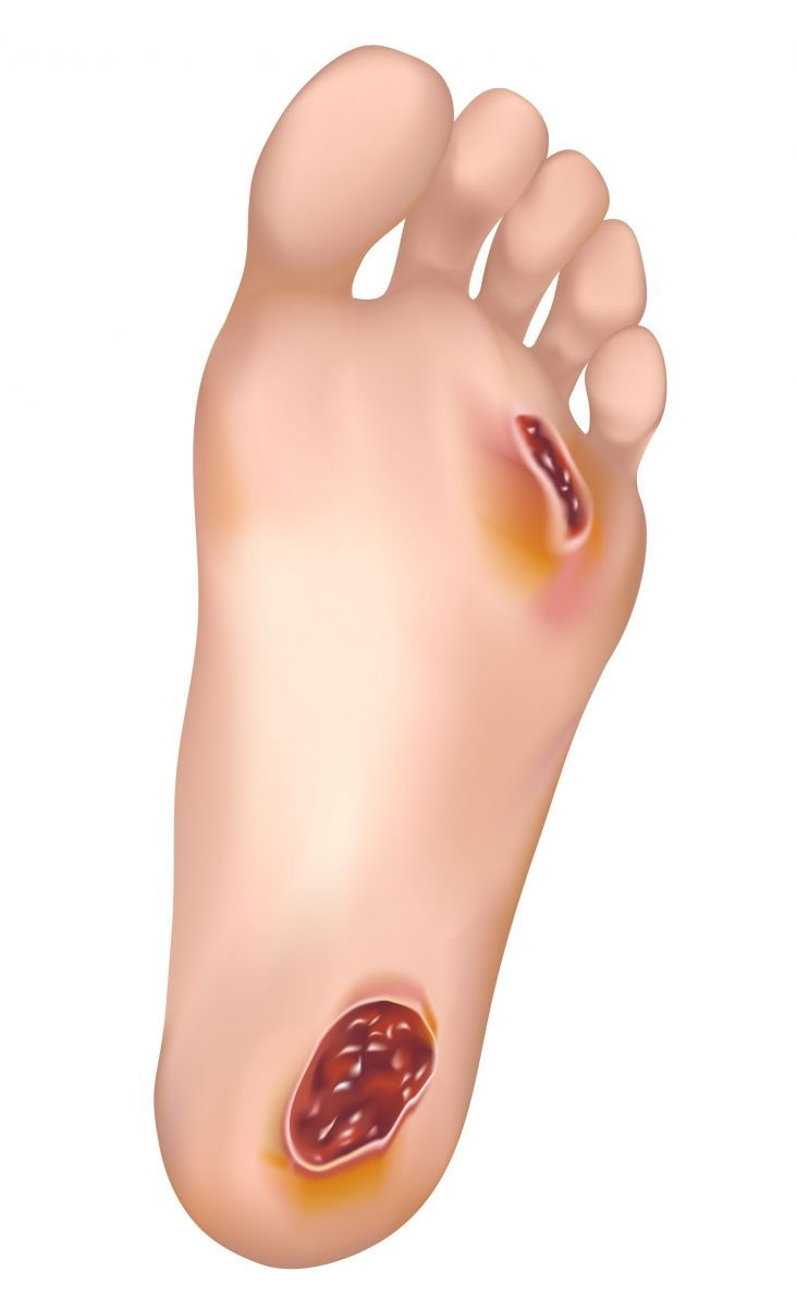 Feet clipart foot care Diabetic Management Foot Singapore Care