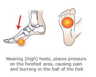 Feet clipart foot pain (Metatarsalgia) of the in ball