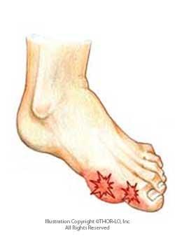 Feet clipart foot pain Feet Clip Pain Art Clip