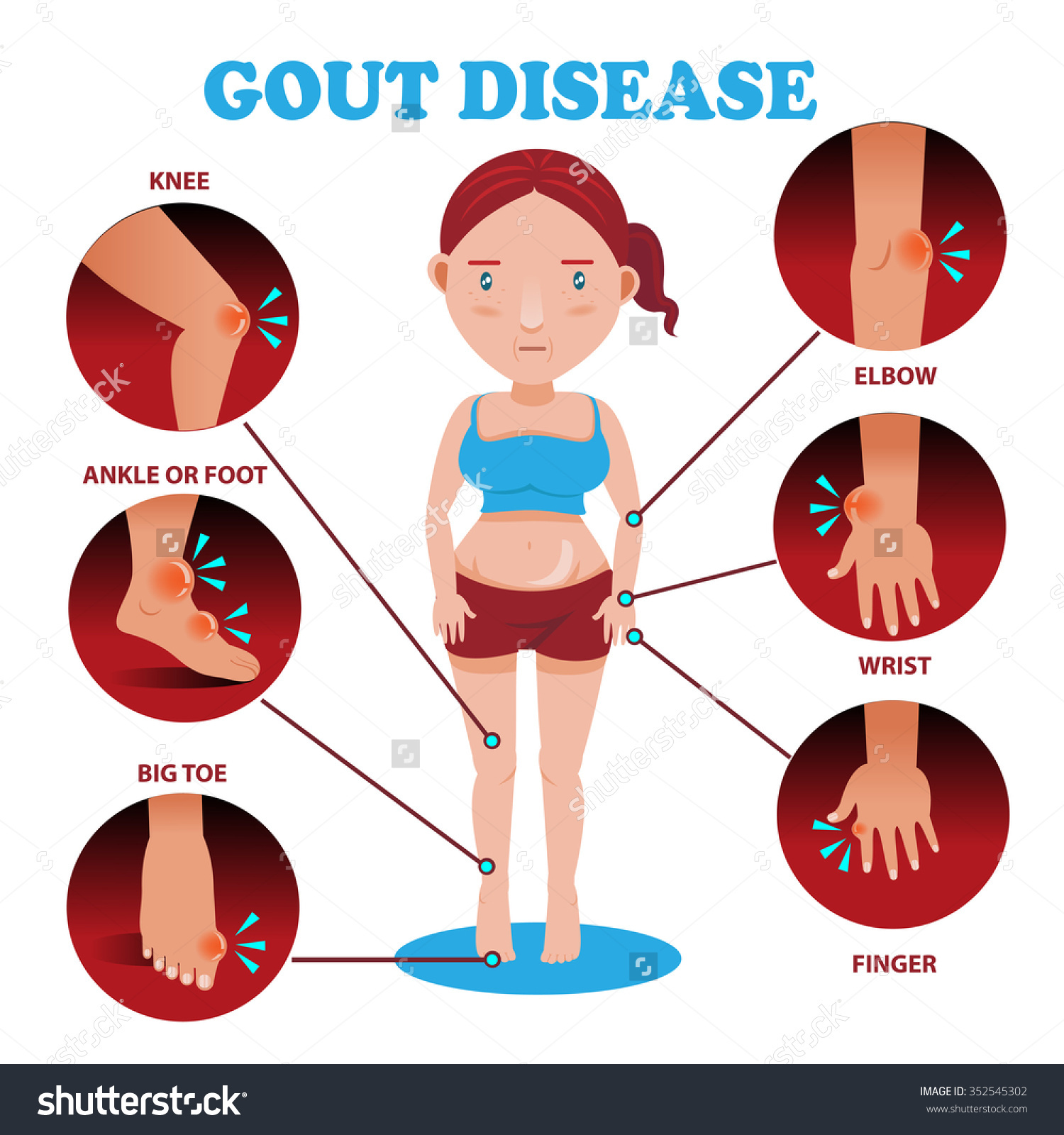 Shoulder clipart arthritis Stomach Advices acid gout Guides