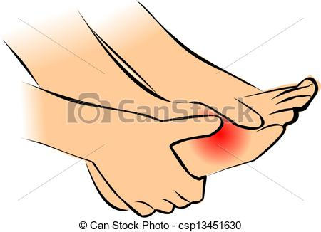 Feet clipart sprained ankle Ankle Drawings ankle of collection