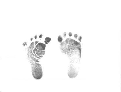 Feet clipart stuff Other FREE: xray drawing baby