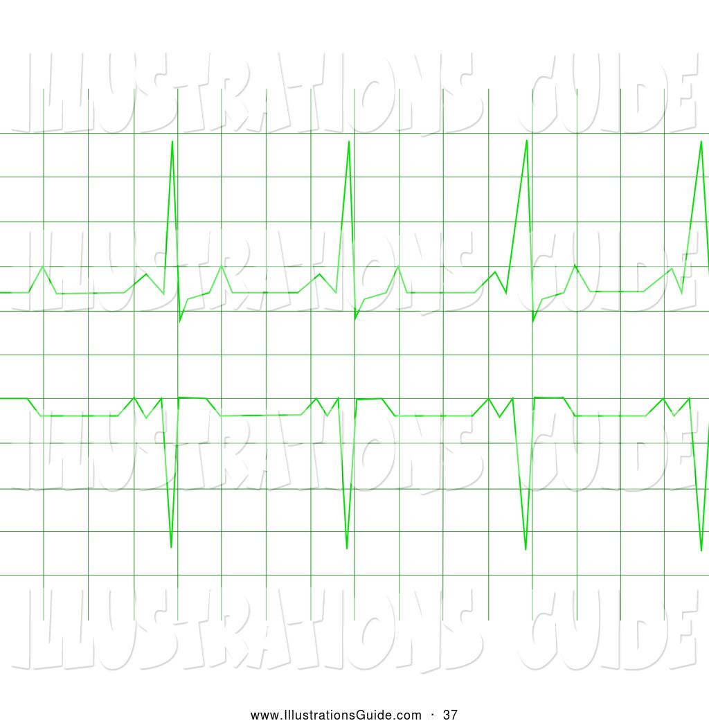 Graph clipart reading a ECG of  Graph Rhythm