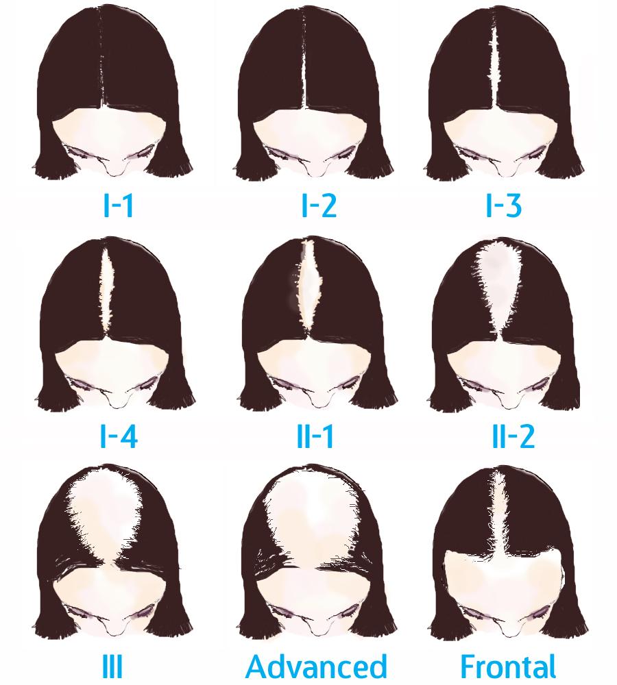 Hair clipart women's hair Hair The Myth Loss Scale