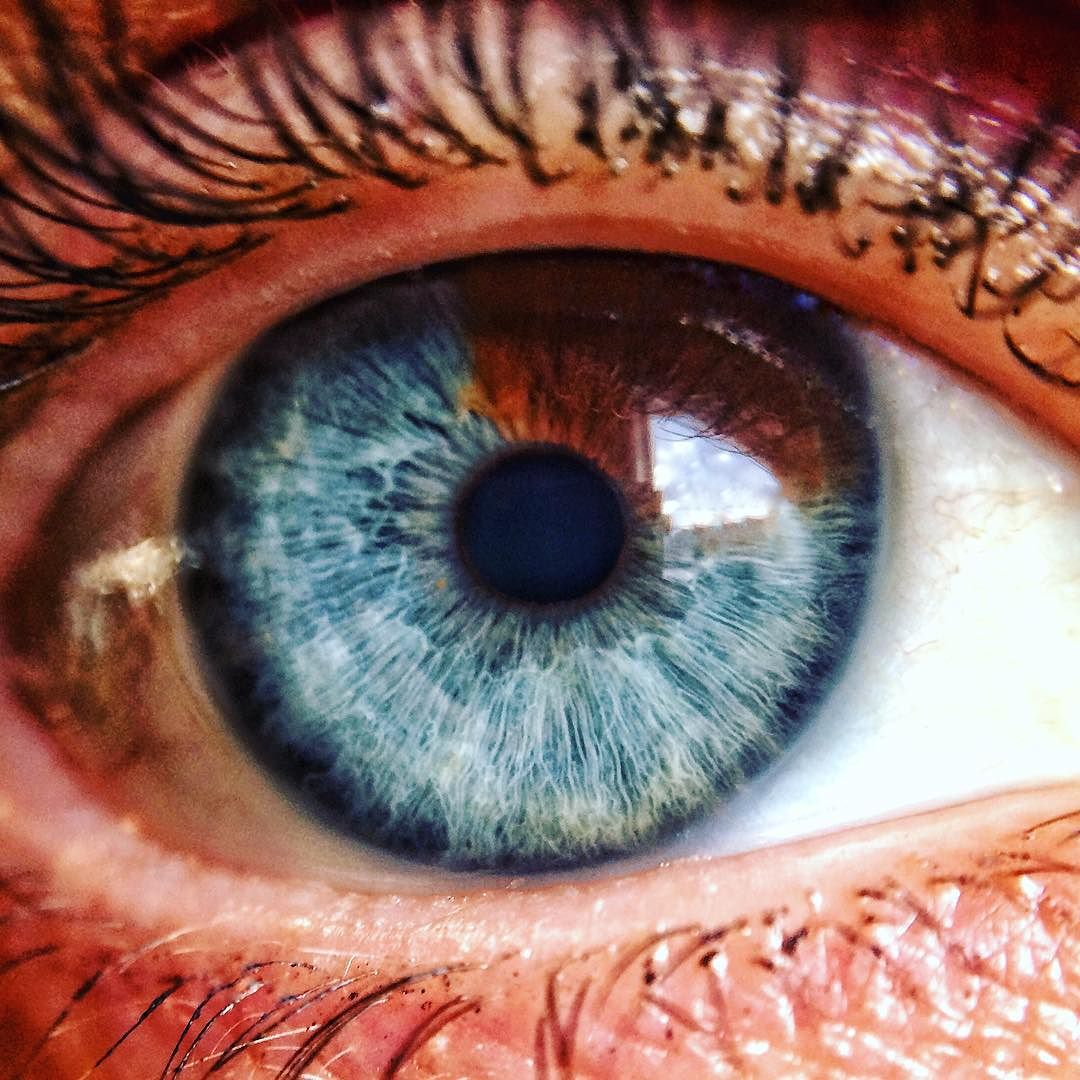 Hazel Eyes clipart sight #heterochromia #eye  #blue #pigment