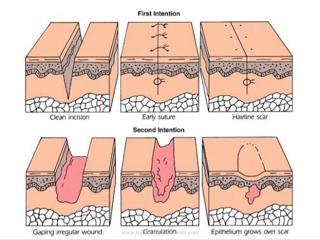 Healing clipart cut wound Indiandentalacademy dentistry Healing  48
