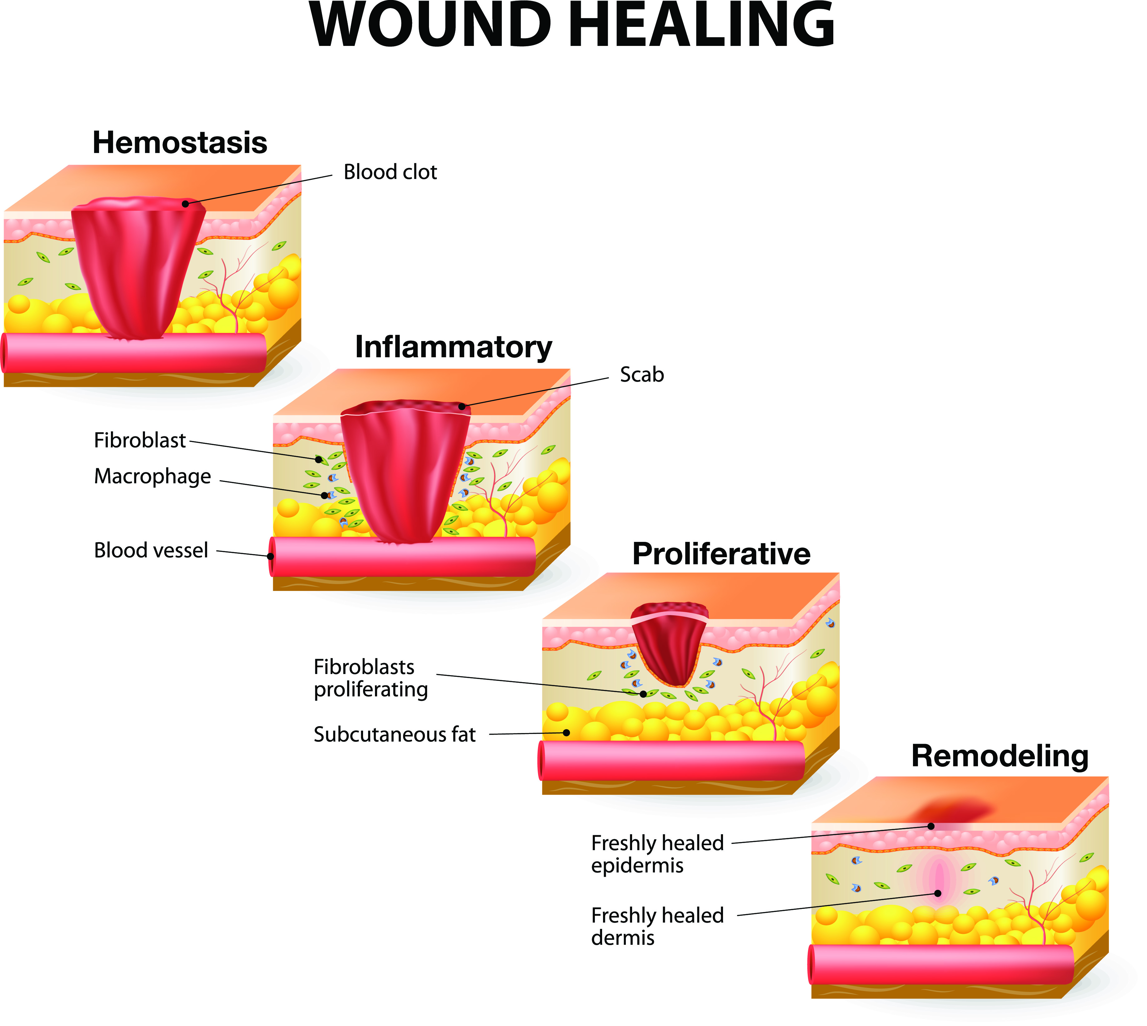 Healing clipart cut wound Healing_image Wound Heal: Stages Wounds