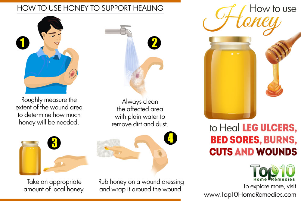 Healing clipart cut wound Use Cuts wounds heal Bed