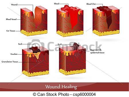 Healing clipart wound  Wound of healing Vector