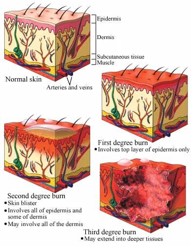 Heat clipart burn injury York of Cancer Care Skin