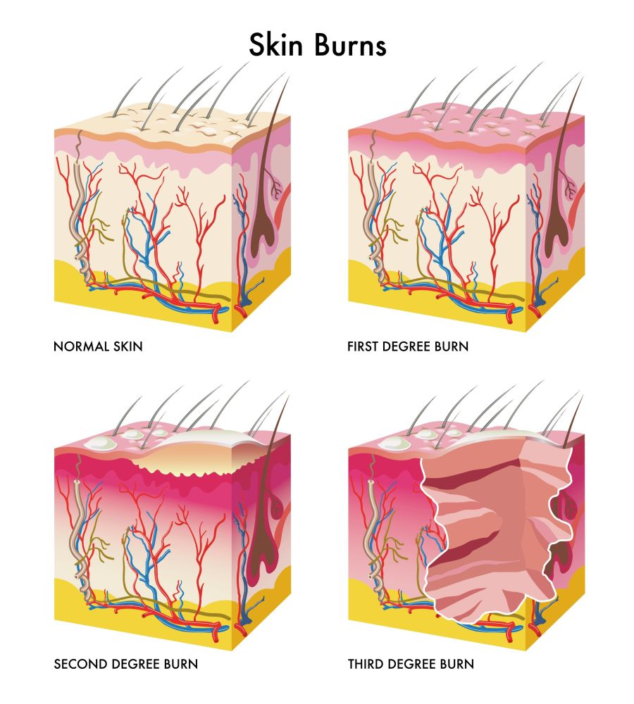 "Heat clipart burn injury Treatment Burn ""BURN WOUNDS"" TYPES"