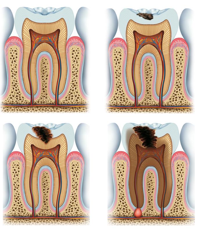 Heat clipart sensitivity Cold Sensitivity Ache Oral Pain