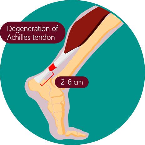 Achilles clipart achilles heel To cm Tendinopathy in the