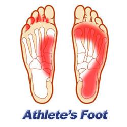 Heels clipart bottom foot Athlete's Athletes Foot Foot Heel