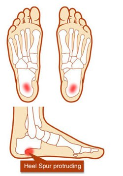 Heels clipart foot pain Pain Diagram Spur Foot To