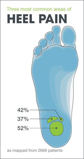 Heels clipart foot pain 109 Find Fasciitis and Heel