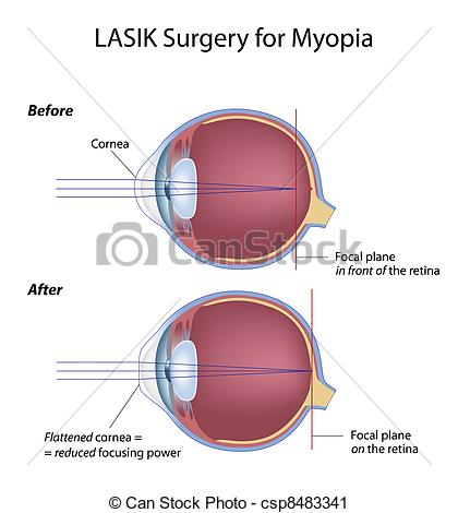 Lazer clipart eye Eye myopia surgery for of