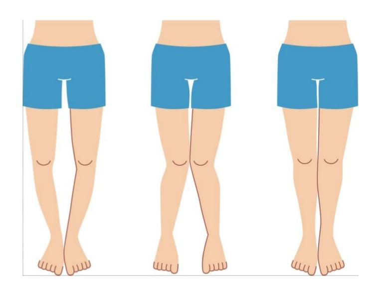 Legs clipart knee Knees le… legs knock of