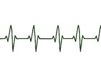 Lines clipart heart rhythm Rhythm Cliparts EKG Heart Zone