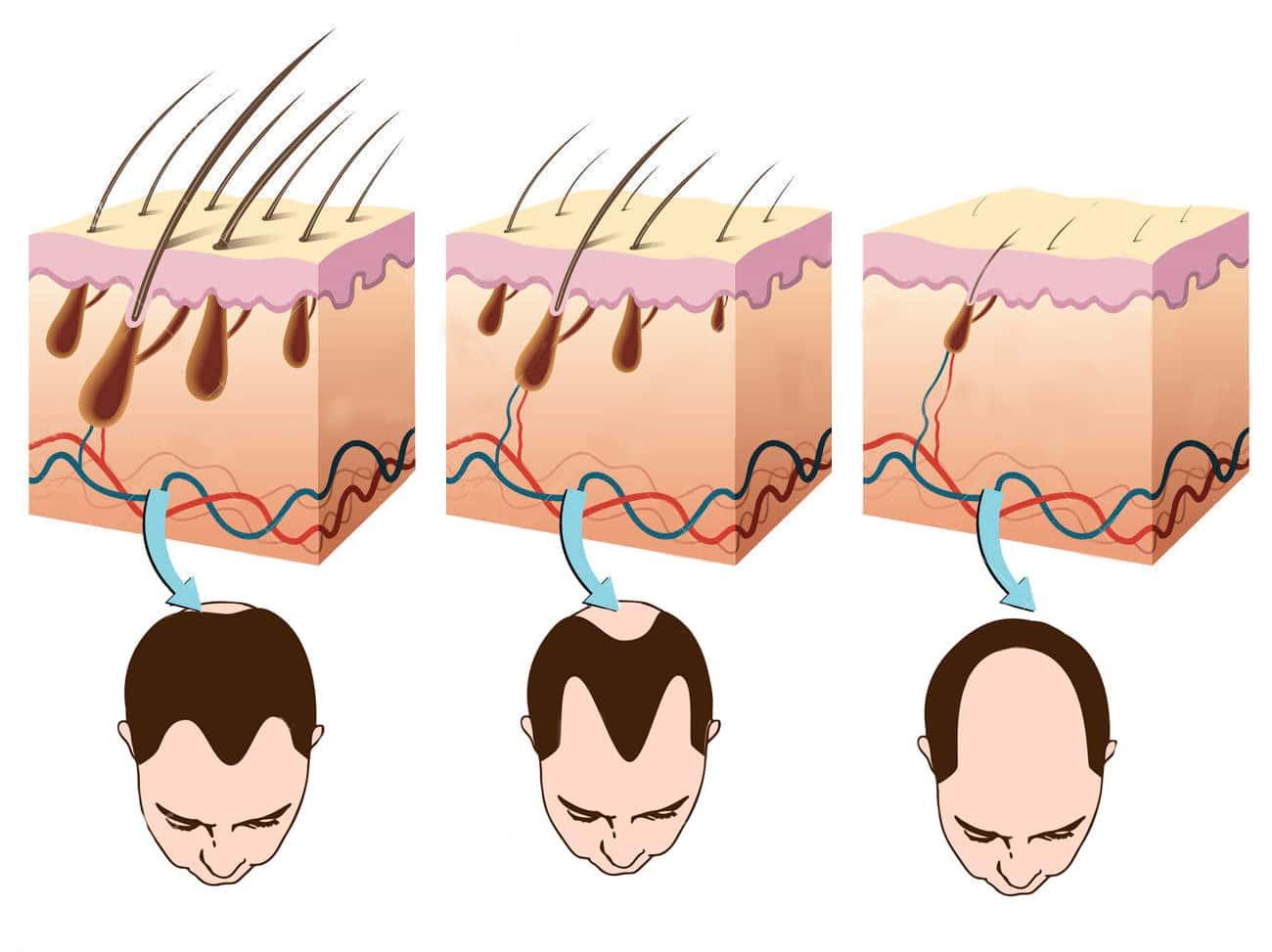 Loss clipart hair treatment Hair Solution Loss and Loss
