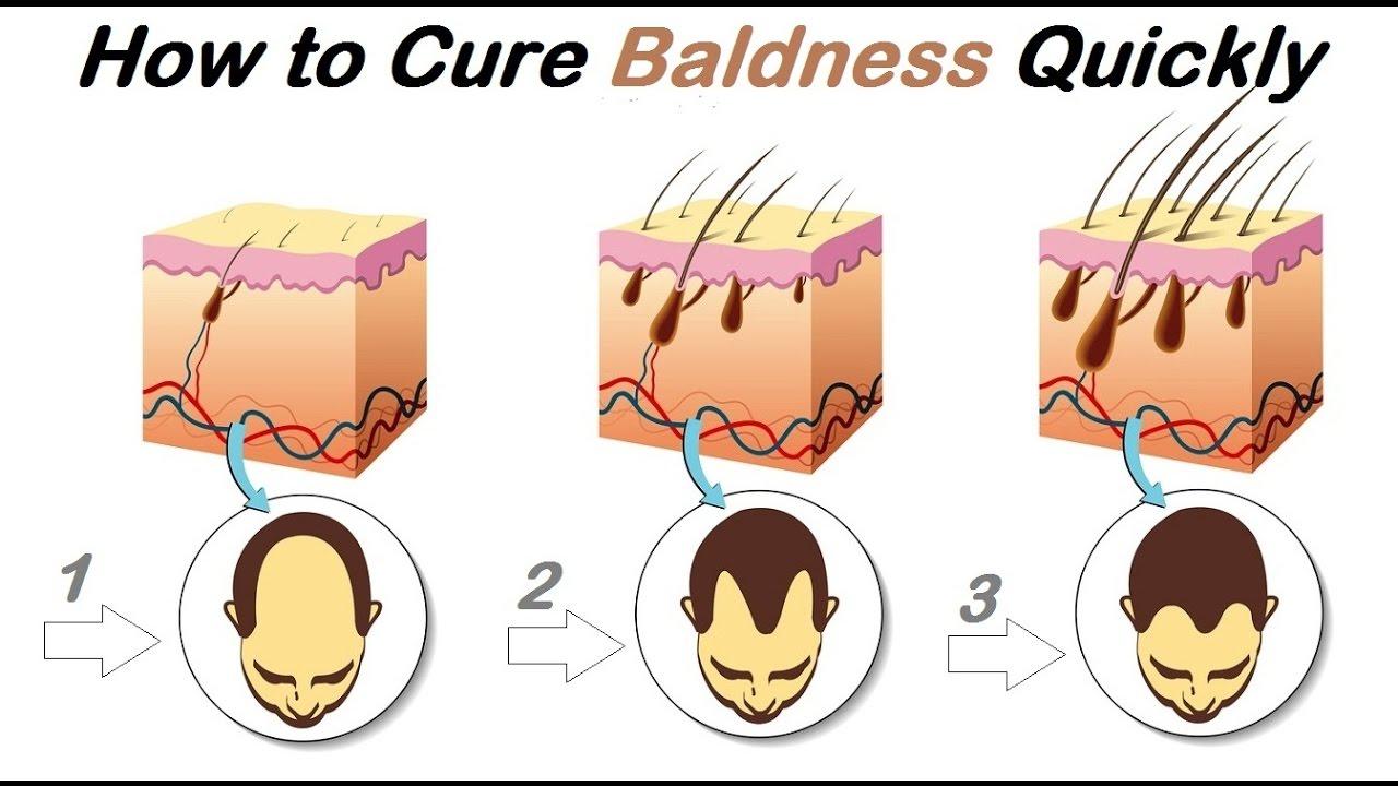 Loss clipart hair treatment Loss weeks treatment hair