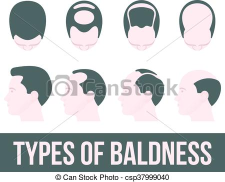 Loss clipart hair treatment Treatment is  of stages