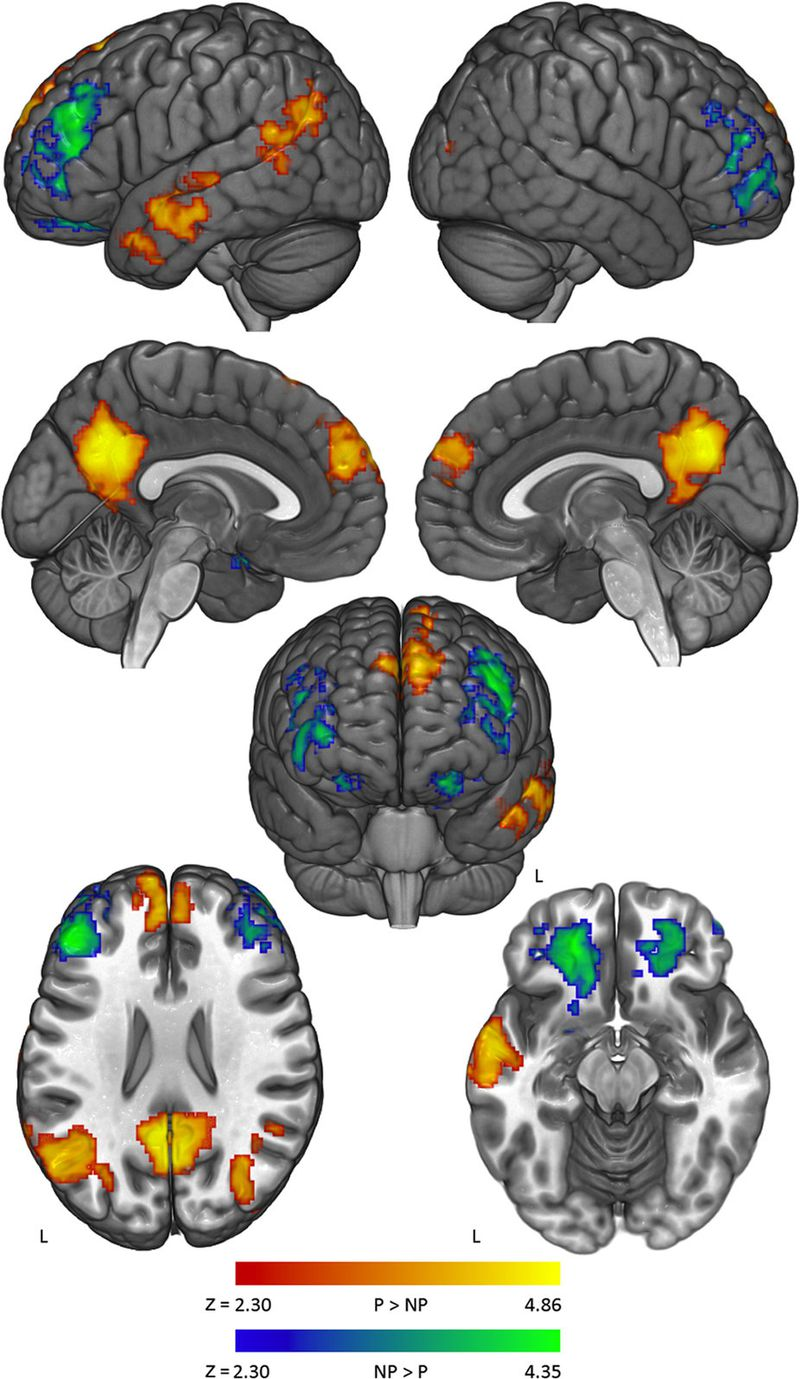Mind clipart part the brain Study the brain sheds of