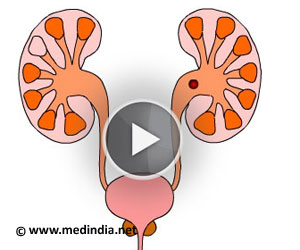 Moving clipart kidney To moving Kidney  Colics