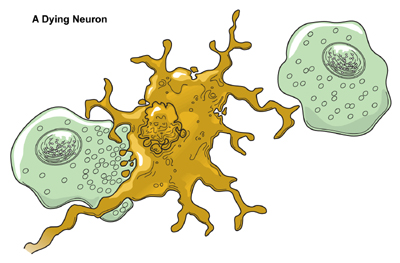 Dying clipart life and death The Neuron Brain  Dying