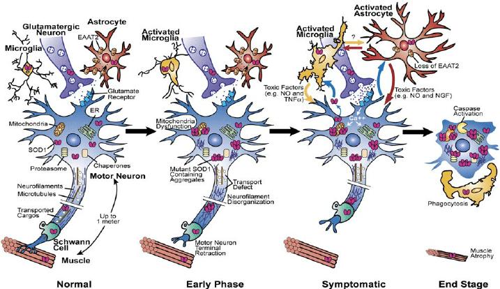 Neuron clipart motor neuron Of of Degeneration Activation Motor