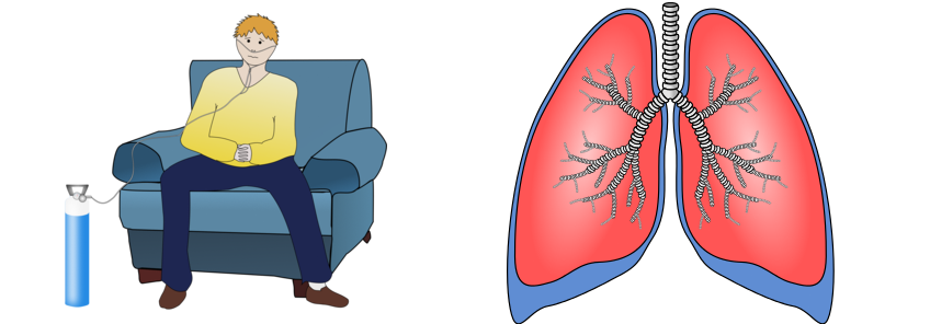No Smoking clipart copd Pulmonary Chronic Nepal (COPD) Disease