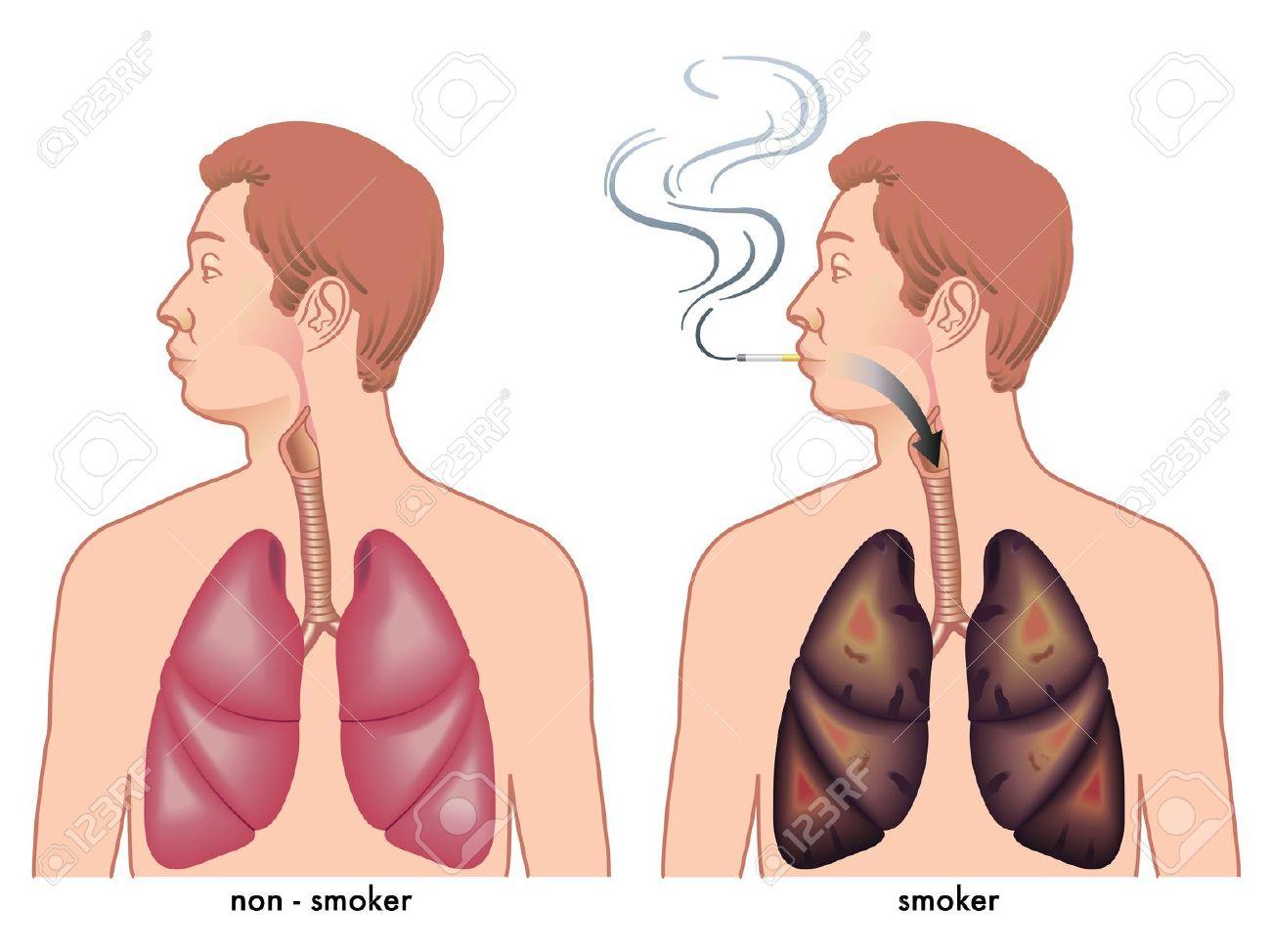 "Smoking clipart hot smoke "" healthy smoker Is vs"