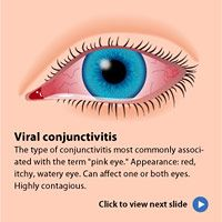 Pink Eyes clipart Eye) eye you and and